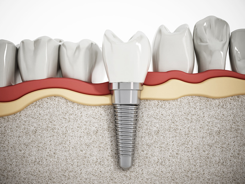 Coral Gables Dental Implants Near You | Dental Smiles